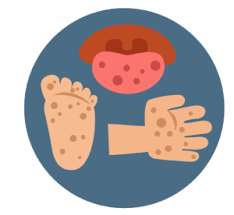 Phụ huynh cần biết chăm sóc trẻ bệnh tay chân miệng tạinhà
