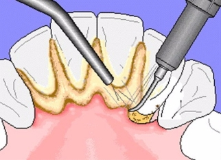 plaque-tartar-removal