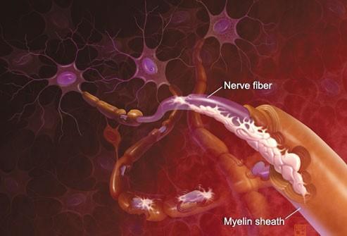 nervefiver
