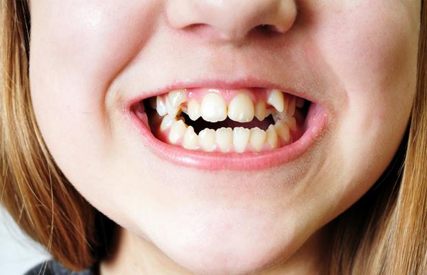 răng3
