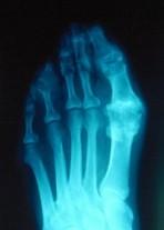 gout test2