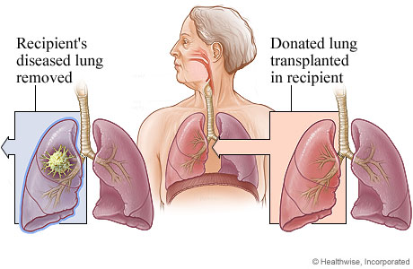 lungtransplant
