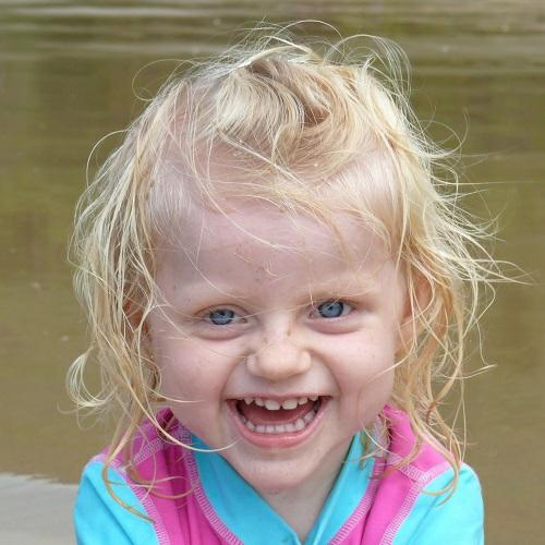Hội chứng thiên thần – Angelman syndrome(AS)
