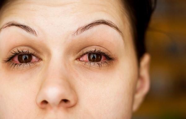 Sick woman's eyes
